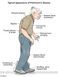 cartoon image of a person with Parkinson's disease